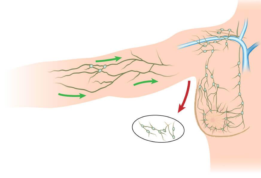 Fisioterapia no Tratamento de Linfedema